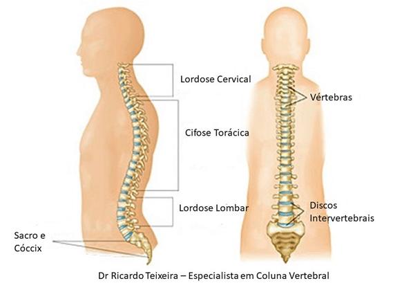 Cifose Torácica | Dr. Ricardo Teixeira